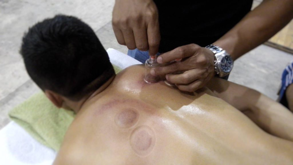 indecam-taller-de-acupuntura-1